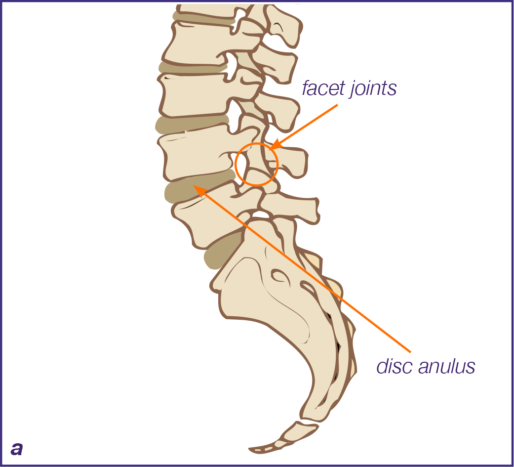 Low Back and Leg Pain - Metro Pain
